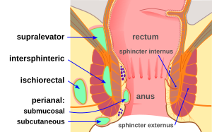 side lump on of left anus