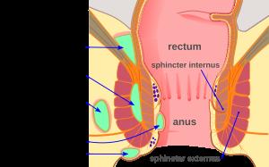 side lump on of left anus