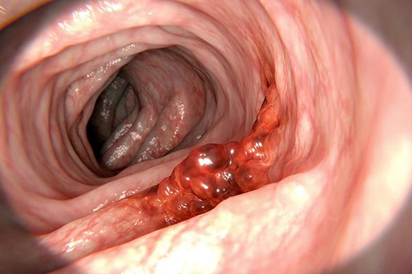breast cancer colonoscopy