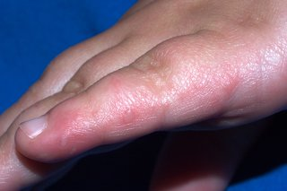 in causes hand mouth disease adults foot
