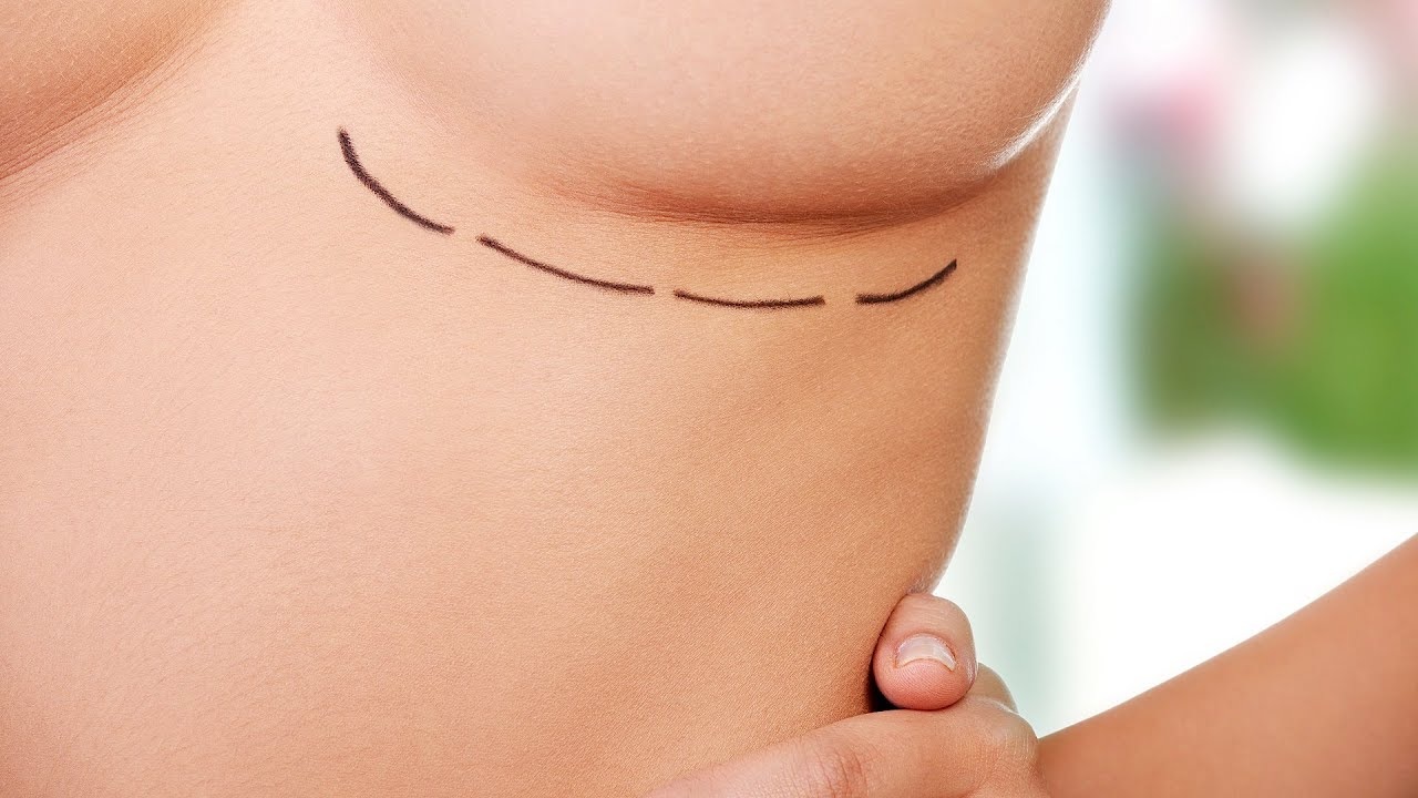 breast prices for argumentation