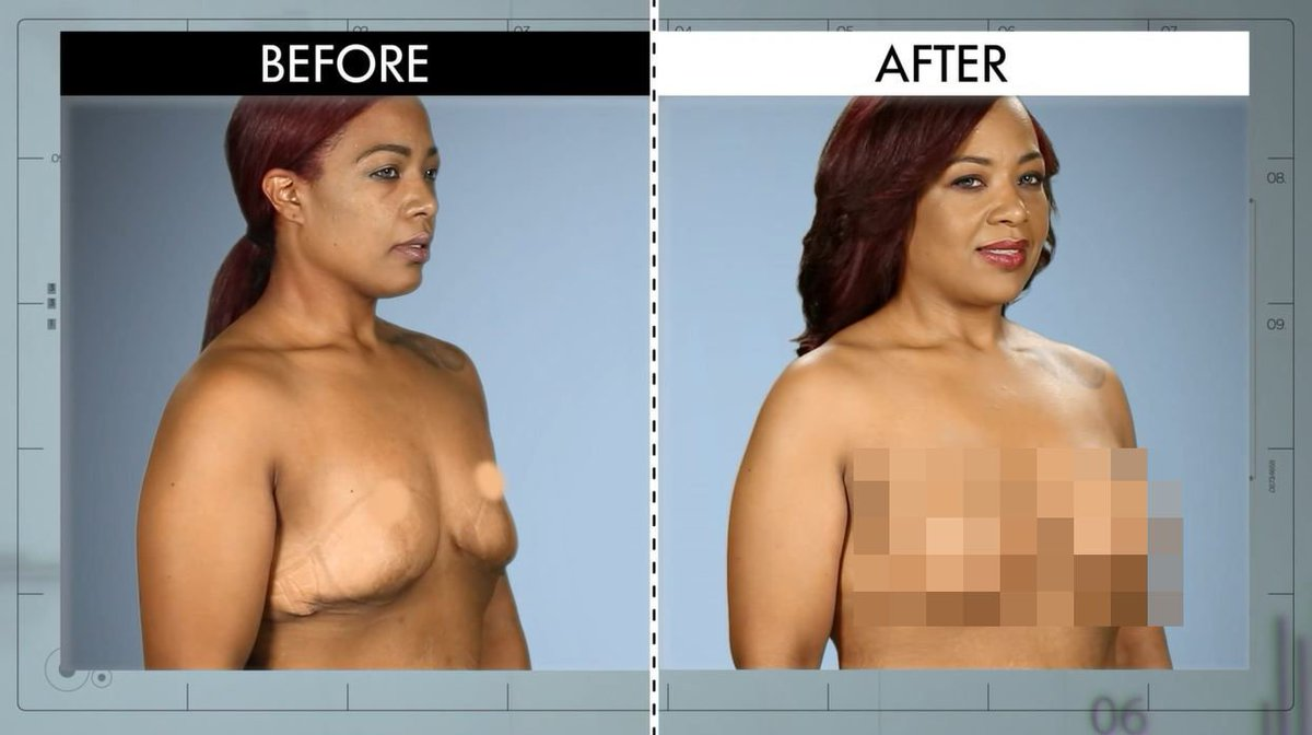 breast reductions botched