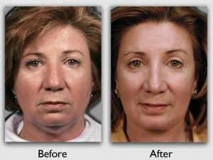 plastic miami surgery facial
