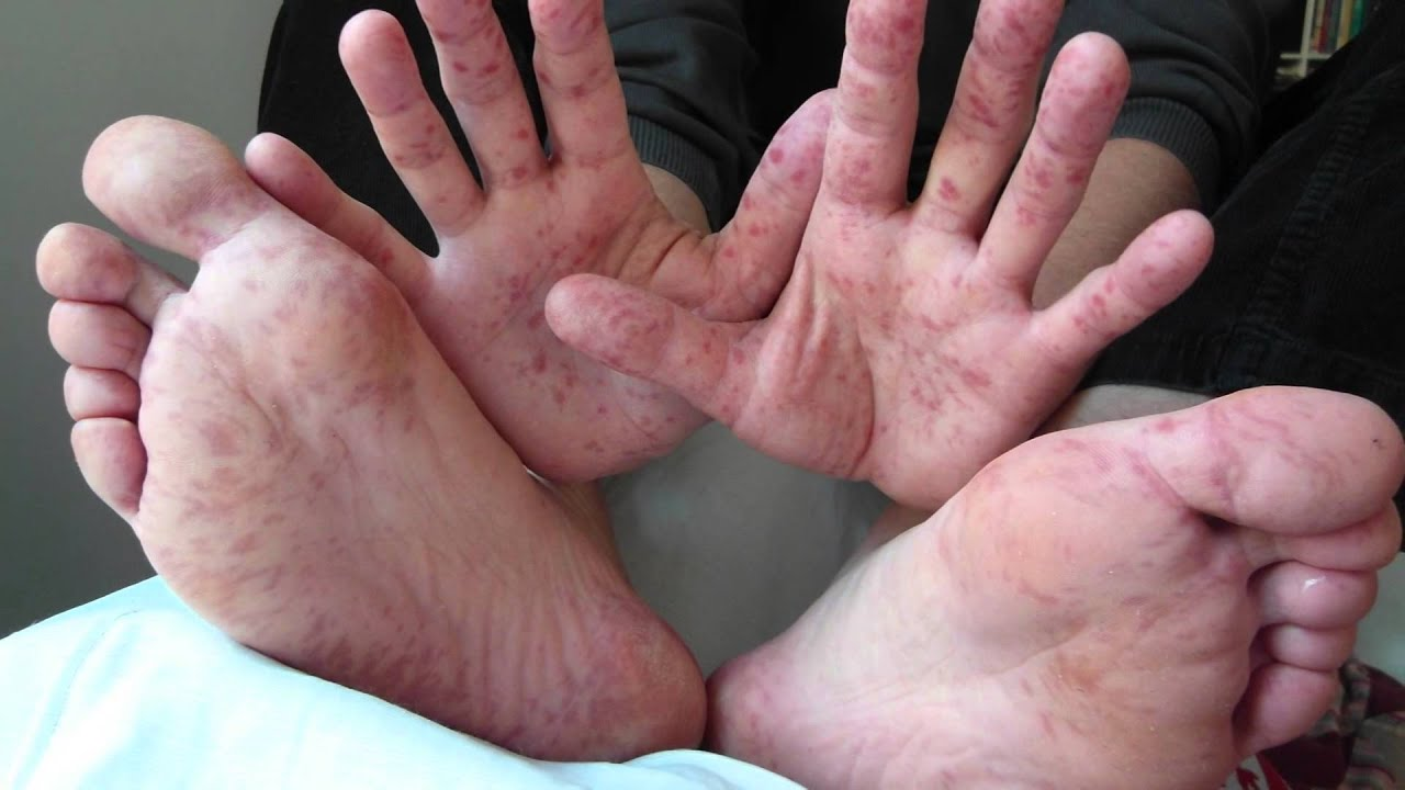 foot hand mouth disease causes adults in